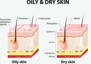 Oily Versus Dry Skin